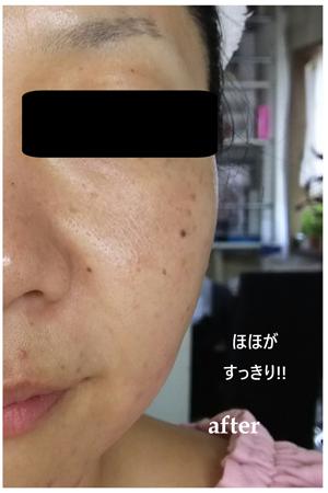 facial_img02
